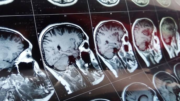 Stroke Patients with COVID-19 Have Increased Systemic Inflammation