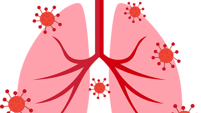 CBD Helps Reduce Lung Damage from COVID-19 by Increasing Levels of Protective Peptide