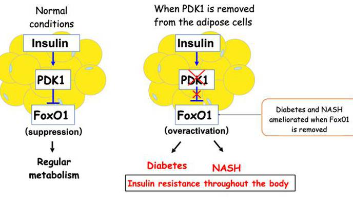 Mechanism Underlying the Development of Diabetes & Fatty Liver Illuminated