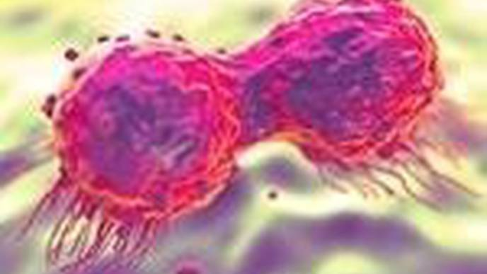 Drug Used to Treat Breast & Ovarian Cancer Can Transform Treatment for Prostate Cancer
