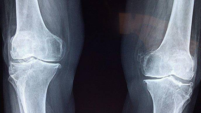 New Technique Cuts Knee MRI Scan Times in Half Without Damaging Diagnostic Certainty