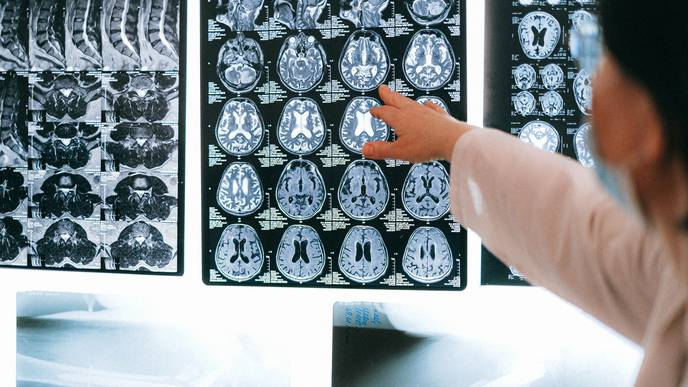 Why Are Some Scientists Turning Away From Brain Scans?