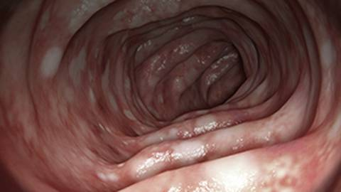 New Perspectives on Biologic Therapy in Moderate to Severe Ulcerative Colitis