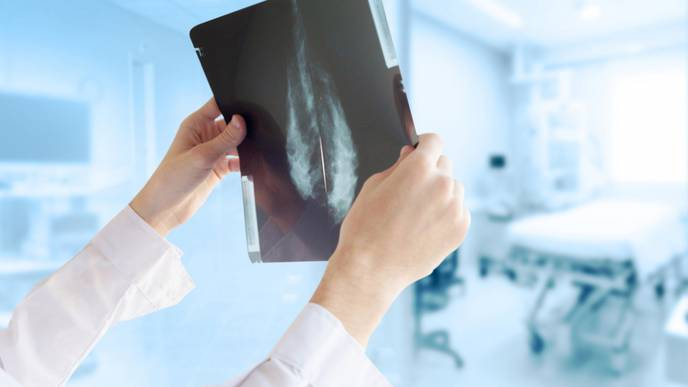 Screening Women in 40s for Breast Cancer Saves Lives
