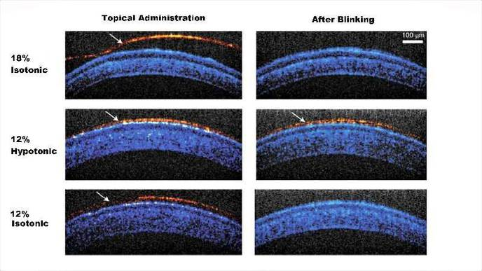 Temperature-Sensitive, Longer-Lasting Eyedrops May Mean Fewer Applications, Better Therapy